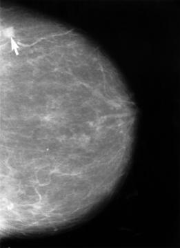Mamografía mostrando un cáncer de mama